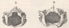 Fig. 9—Posterior end of skull of Rabbits. Fig. 10—Occipital Foramen of Rabbits.