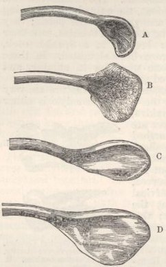 Fig. 38—Extremity of the Furcula of Fowls